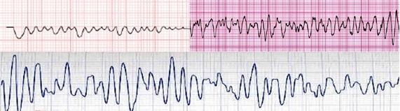 Diferentes tipos de fibrilación ventricular