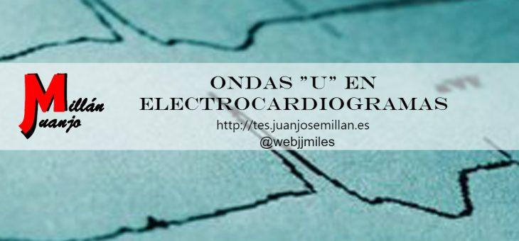 """Ondas """"U"""" en electrocardiogramas"""
