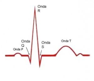 Electro con ritmo sinusal