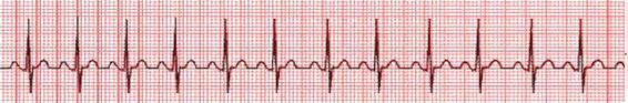 Tira de ritmo taquicardia sinusal